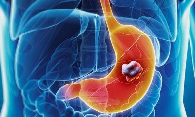 Alertan sobre la dificultad para diagnosticar el cáncer gástrico