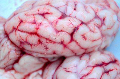 Si duermes poco, tu cerebro se convierte en caníbal