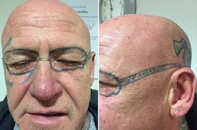 Se fue de fiesta y terminó con un terrible tatuaje en el rostro (FOTOS)