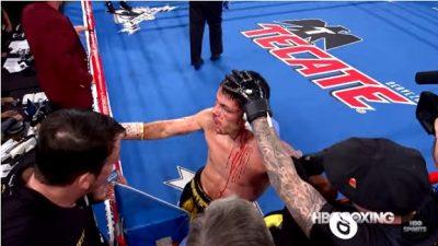 ¡Escalofriante! Boxeador casi pierde una oreja por los golpes recibidos (VÍDEO)