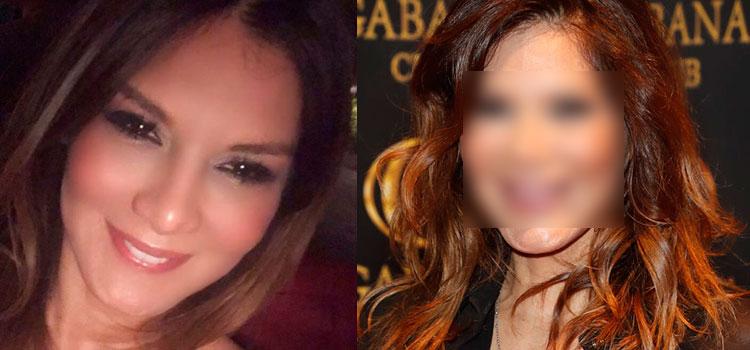 Actriz venezolana sufre impresionante cambio tras cirugías estéticas (FOTOS)