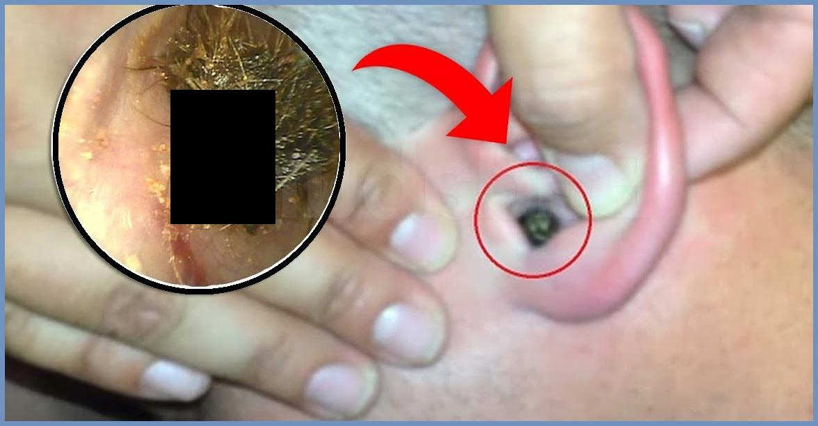 Acude al médico por rara sensación en el oído y le extraen un terrible insecto