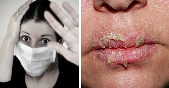Top 10 de las enfermedades contagiosas que no querrás tener