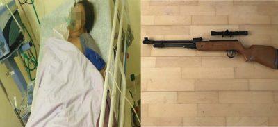 ¡Fatal! mujer se dispara tras discutir con su pareja (FOTO)