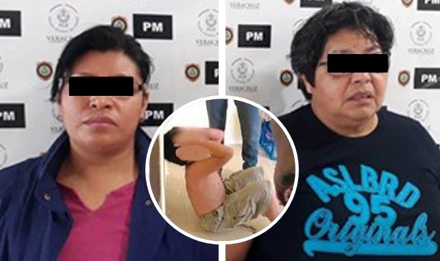 Indigna pareja de lesbianas que torturaba a su hijo de 8 años en Veracruz