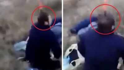 Sujeto decide enterrarse un cuchillo en la cabeza 'para poder respirar' (VIDEO)