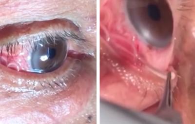 Remueven <i>espeluznante</i> gusano que vivía en el ojo de un paciente(VIDEO)