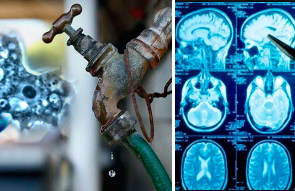 Espeluznante: Mujer utiliza agua de la llave y amebas se comen su cerebro
