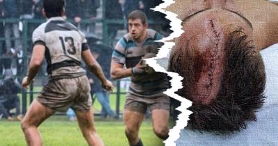 Jugador de rugby sufre impactante herida en el cráneo y recibe 74 puntadas