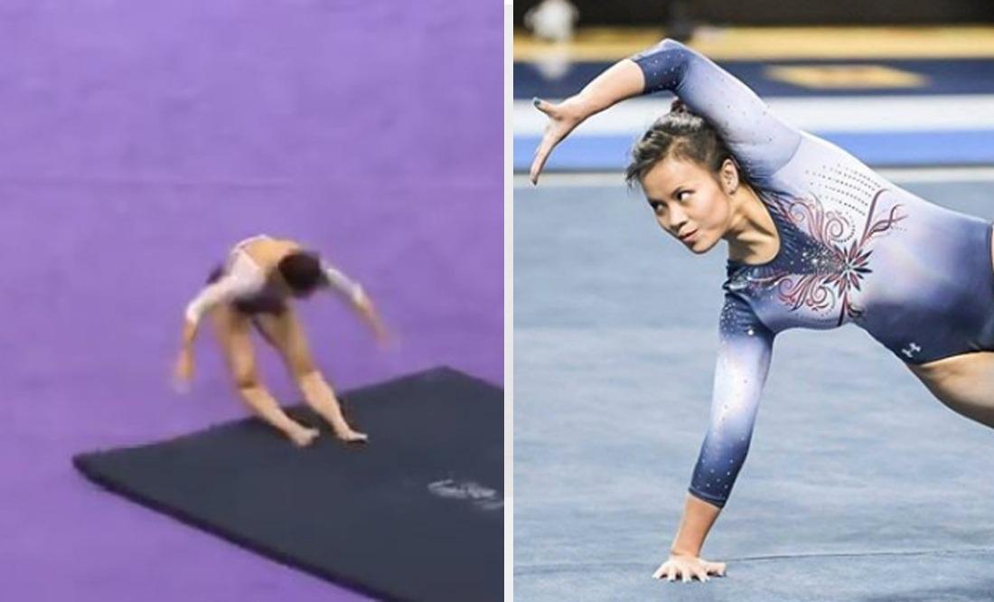 Difunden cómo quedó la gimnasta que se fracturó las dos piernas tras caída