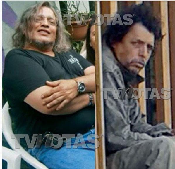 Así luce el actor Rafael Rojas que vive como indigente